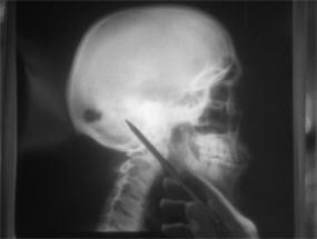 twd36-skull1b