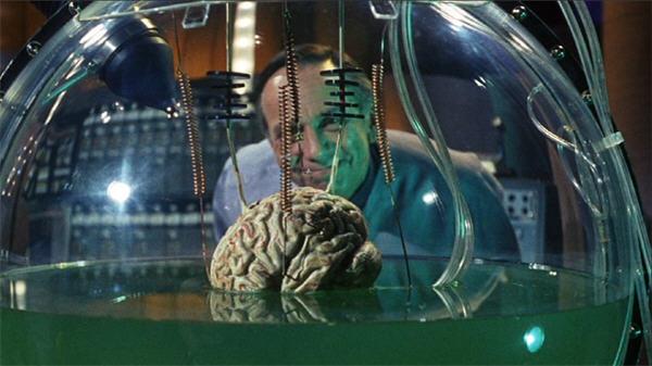 px68-brain2b